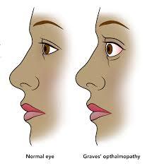 Graves Ophthalmopathy